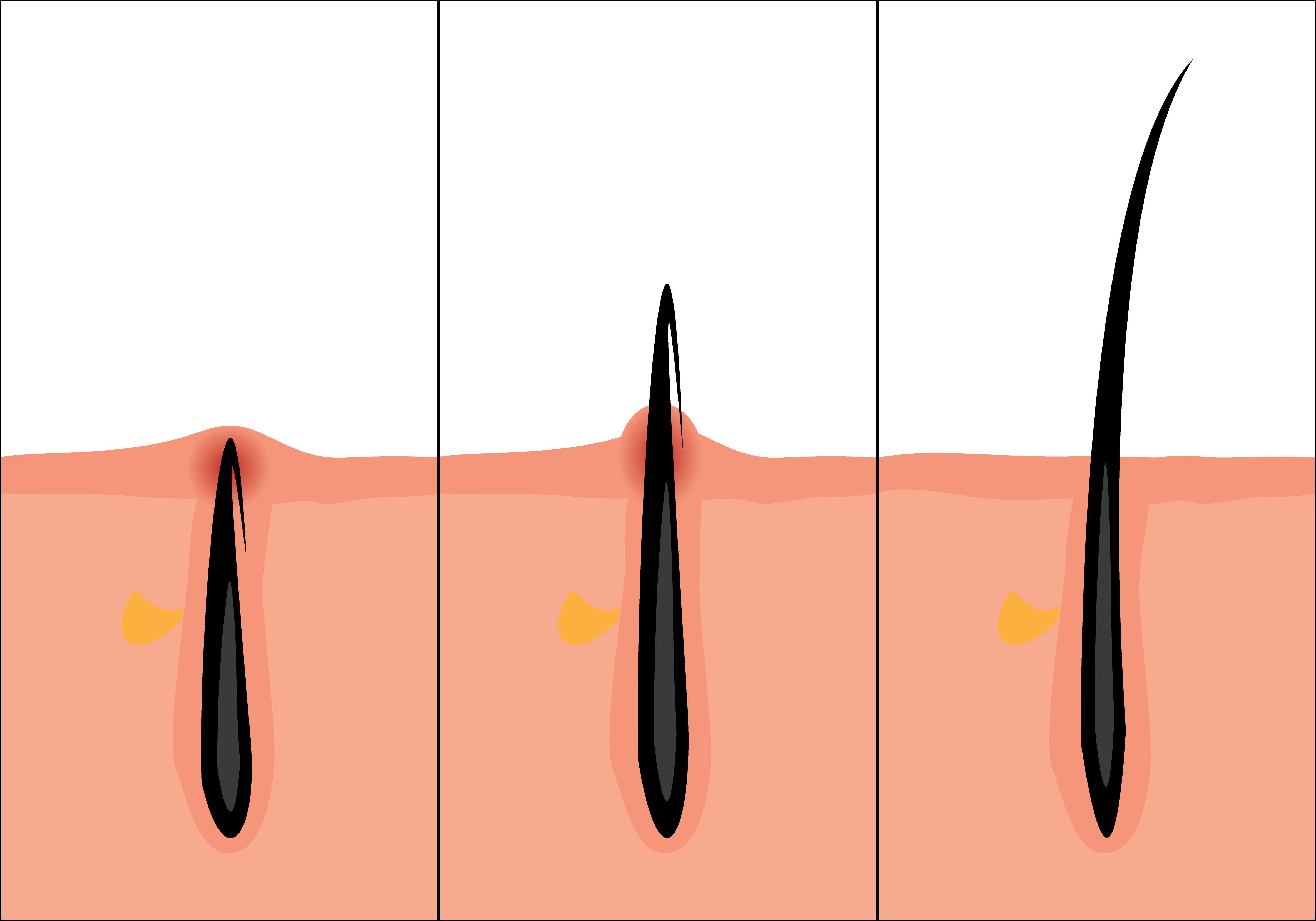 Eingewachsenes Haar versus normales Haar