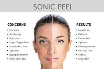 BBS Care Sonic Peel Ultraschallpeelinggerät Mikrodermabrasion Ionentherapie -Ultraschall Skin Scrubber Gesichts - 3