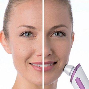 Beurer FC 76 Mikrodermabrasion, verbessertes Hautbild, verfeinerte Poren, handliches und leichtes Handgerät - 2