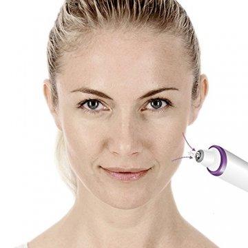 Beurer FC 76 Mikrodermabrasion, verbessertes Hautbild, verfeinerte Poren, handliches und leichtes Handgerät - 4