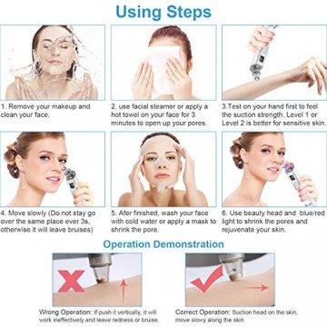 Mitesserentferner mit LCD-Anzeige und IPL-Behandlung, Mitesser Sauger Porenreiniger I-MILY Mitesser Entferner Elektrisch Poren Reinigung Sauger für Gesichtshaut Behandlung | Deutsche Anleitung (blau) - 9