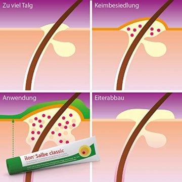 ilon Salbe classic 25g – die grüne Zugsalbe gegen Hautentzündungen bis hin zu kleineren Abszessen, Haarbalgentzündungen oder Schweißdrüsenentzündungen. Natürlich sanft zur Haut mit einzigartiger pflanzlicher Wirkstoffkombination - 5